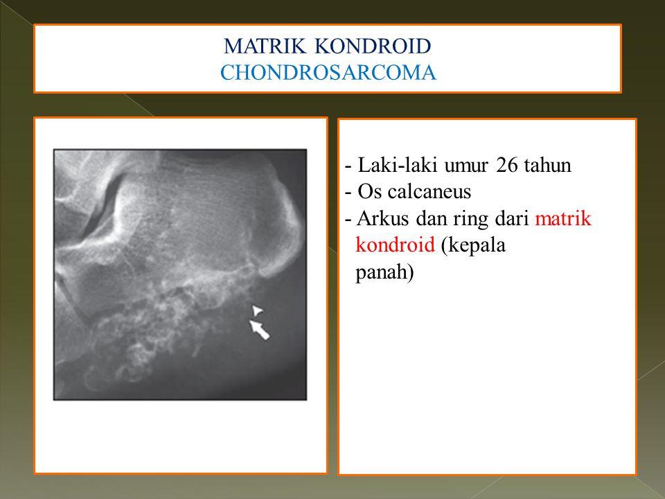 MATRIK KONDROID CHONDROSARCOMA - Laki-laki umur 26 tahun - Os calcaneus - Arkus dan ring dari matrik kondroid (kepala panah)