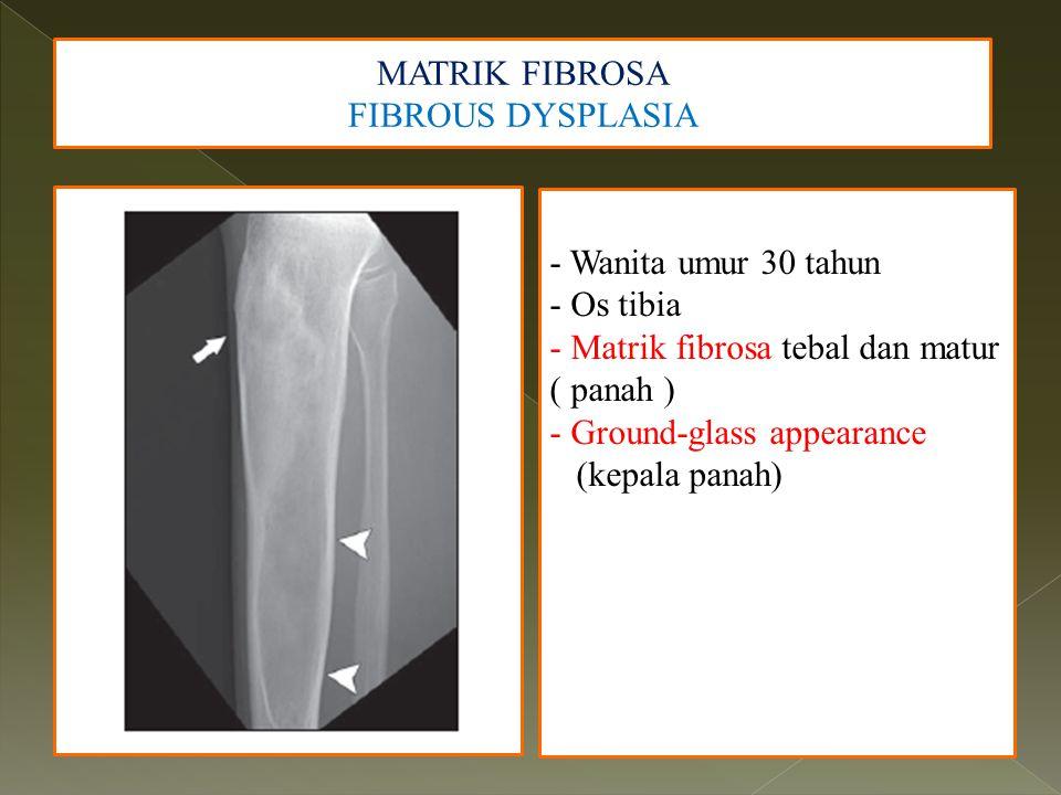 MATRIK FIBROSA FIBROUS DYSPLASIA - Wanita umur 30 tahun - Os tibia - Matrik fibrosa tebal dan matur ( panah ) - Ground-glass appearance (kepala panah)