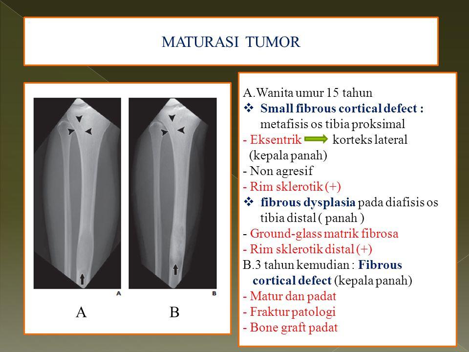 MATURASI TUMOR AABAAB A.Wanita umur 15 tahun  Small fibrous cortical defect : metafisis os tibia proksimal - Eksentrik korteks lateral (kepala panah)