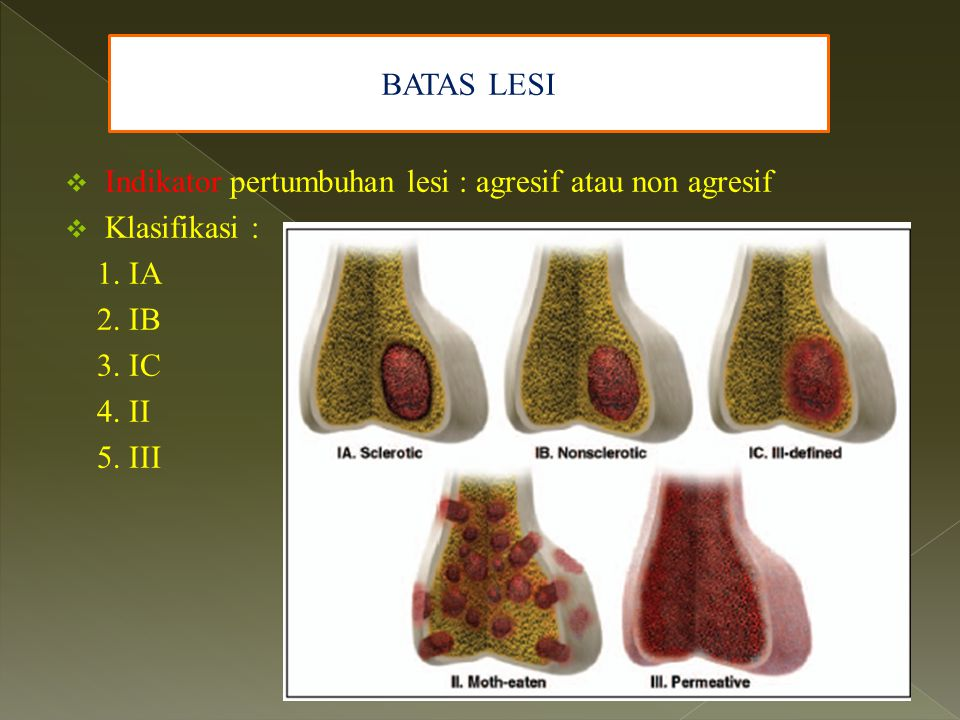  Indikator pertumbuhan lesi : agresif atau non agresif  Klasifikasi : 1. IA 2. IB 3. IC 4. II 5. III BATAS LESI