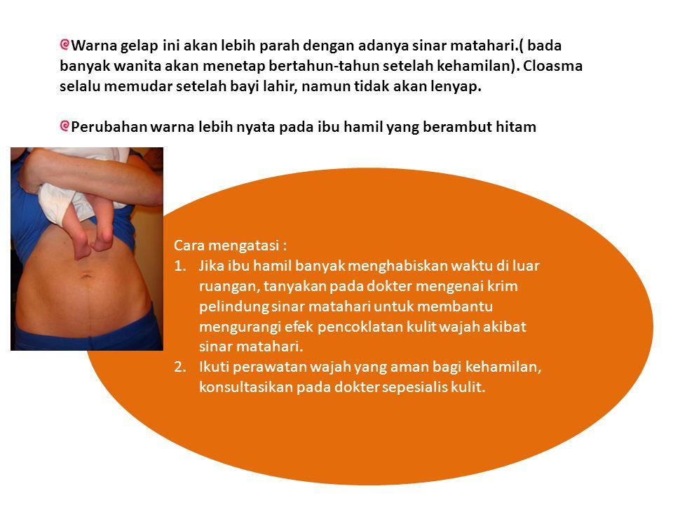 Cara mengatasi : 1.Jika ibu hamil banyak menghabiskan waktu di luar ruangan, tanyakan pada dokter mengenai krim pelindung sinar matahari untuk membantu mengurangi efek pencoklatan kulit wajah akibat sinar matahari.