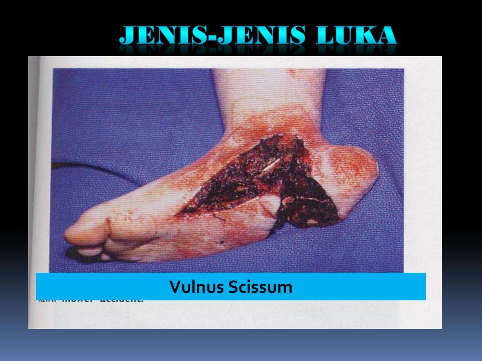 Vulnus Scissum