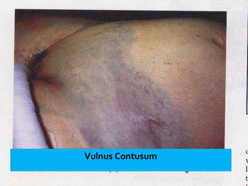 Vulnus Contusum