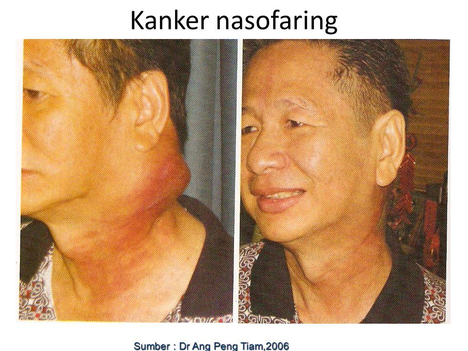 Kanker nasofaring Sumber : Dr Ang Peng Tiam,2006