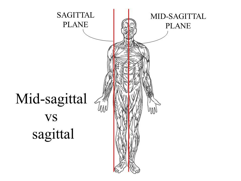 MID-SAGITTAL PLANE SAGITTAL PLANE Mid-sagittal vs sagittal