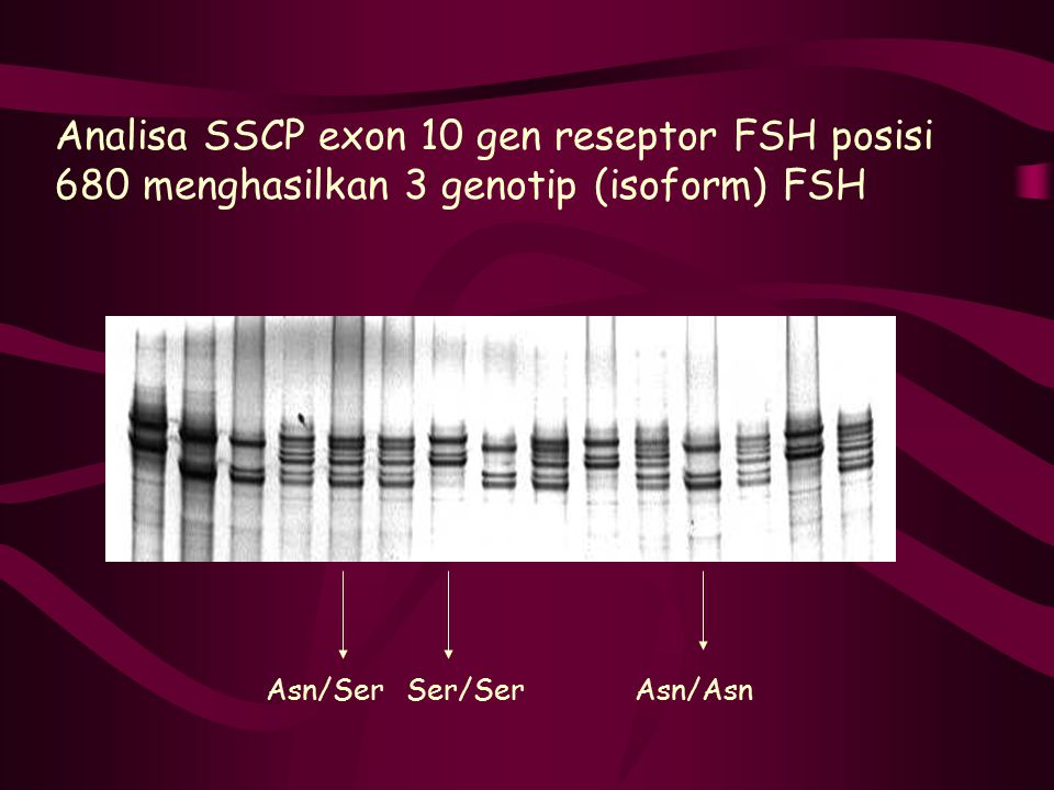 Analisa SSCP exon 10 gen reseptor FSH posisi 680 menghasilkan 3 genotip (isoform) FSH Asn/SerSer/SerAsn/Asn