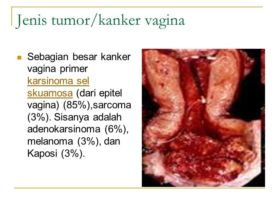 Jenis tumor/kanker vagina Sebagian besar kanker vagina primer karsinoma sel skuamosa (dari epitel vagina) (85%),sarcoma (3%). Sisanya adalah adenokars