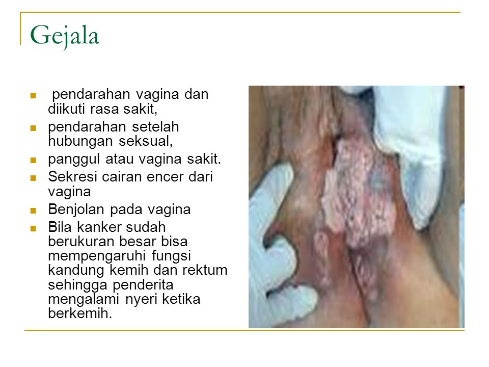 Gejala pendarahan vagina dan diikuti rasa sakit, pendarahan setelah hubungan seksual, panggul atau vagina sakit. Sekresi cairan encer dari vagina Benj