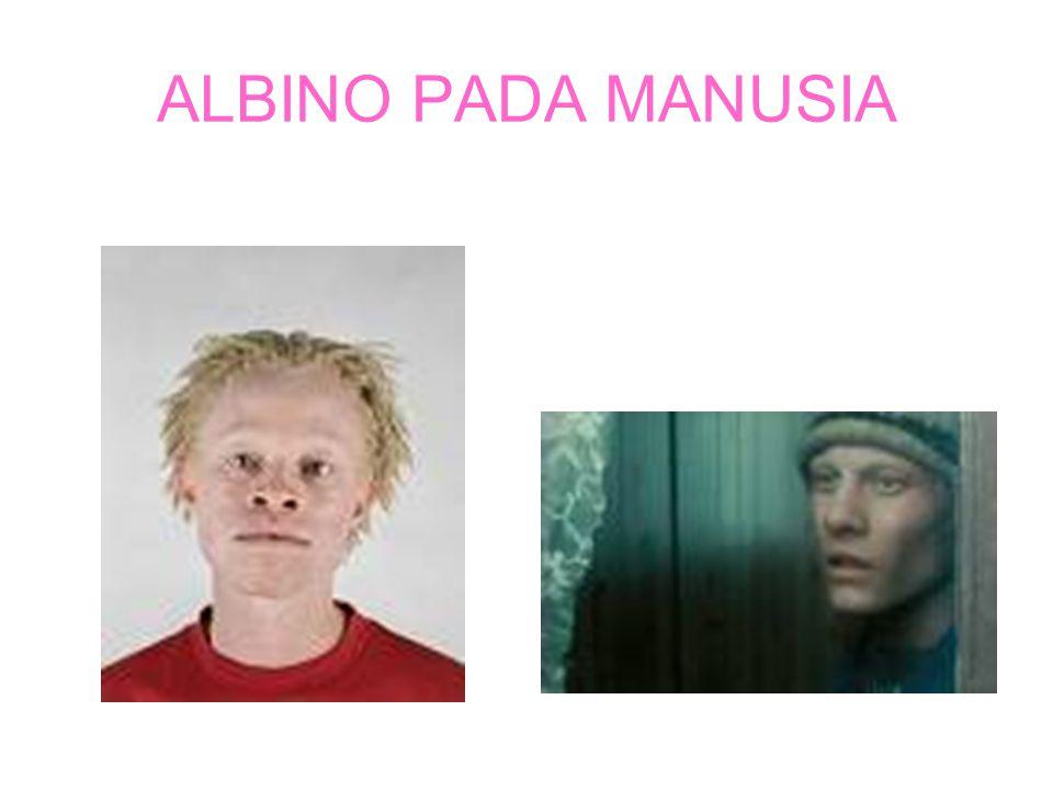 ALBINO Albino pada kanguruAlbino pada gorila