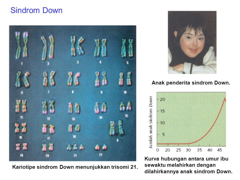 Kelainan-kelainan pada manusia yang disebabkan oleh perubahan kromosom Sindrom Down Sindrom Klinefelter Sindrom Cri du chat Trisomi 21 sehingga memili