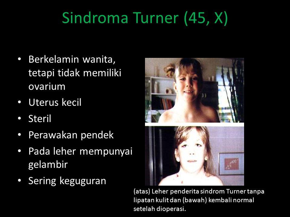 Sindroma Turner (45, X) Berkelamin wanita, tetapi tidak memiliki ovarium Uterus kecil Steril Perawakan pendek Pada leher mempunyai gelambir Sering keguguran (atas) Leher penderita sindrom Turner tanpa lipatan kulit dan (bawah) kembali normal setelah dioperasi.