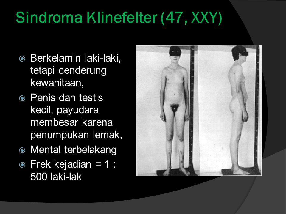 Sindroma Klinefelter (47, XXY)  Berkelamin laki-laki, tetapi cenderung kewanitaan,  Penis dan testis kecil, payudara membesar karena penumpukan lemak,  Mental terbelakang  Frek kejadian = 1 : 500 laki-laki
