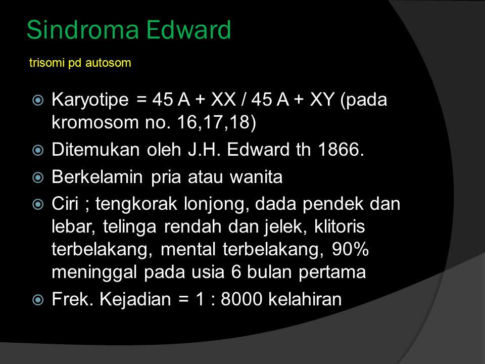 Sindroma Edward  Karyotipe = 45 A + XX / 45 A + XY (pada kromosom no. 16,17,18)  Ditemukan oleh J.H. Edward th 1866.  Berkelamin pria atau wanita 