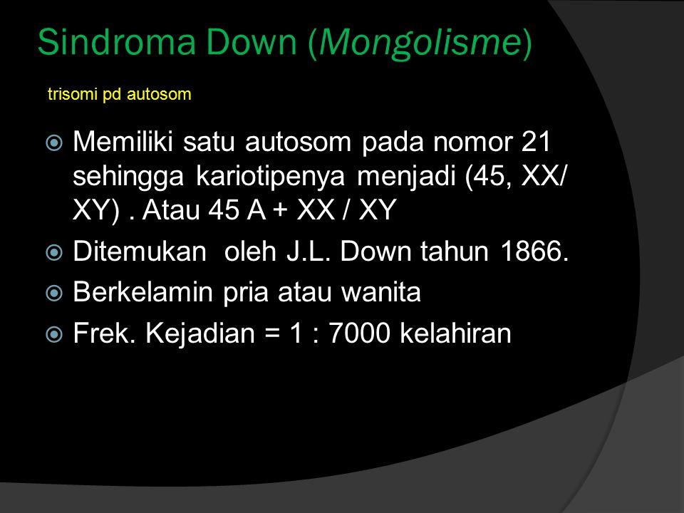 Sindroma Down (Mongolisme)  Memiliki satu autosom pada nomor 21 sehingga kariotipenya menjadi (45, XX/ XY). Atau 45 A + XX / XY  Ditemukan oleh J.L.