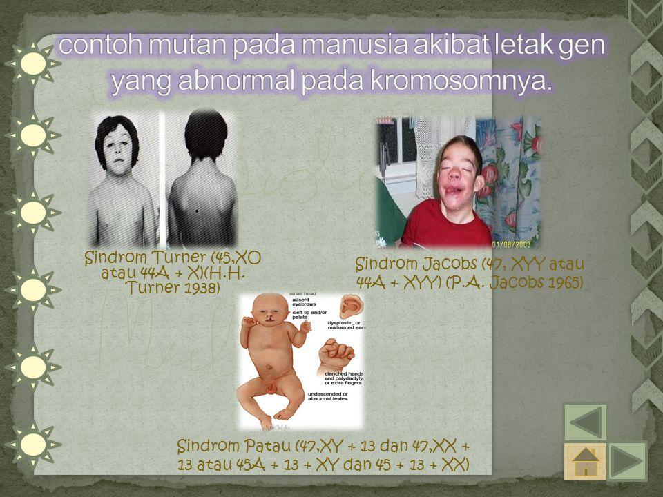 Sindrom Turner (45,XO atau 44A + X)(H.H.Turner 1938) Sindrom Jacobs (47, XYY atau 44A + XYY) (P.A.