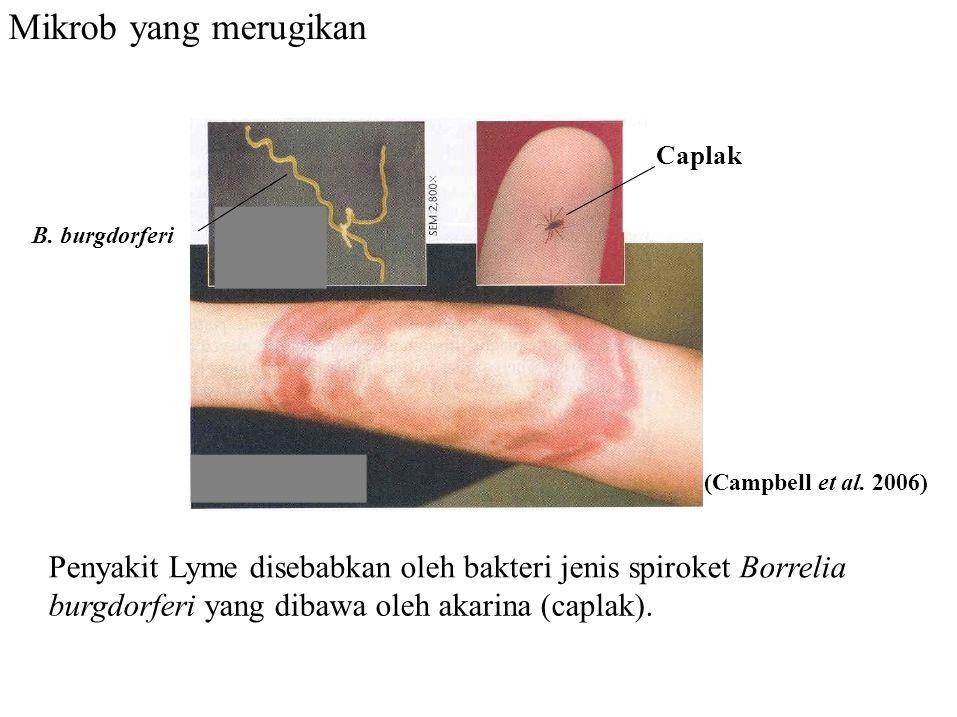 Mikrob yang merugikan Penyakit Lyme disebabkan oleh bakteri jenis spiroket Borrelia burgdorferi yang dibawa oleh akarina (caplak). Caplak B. burgdorfe