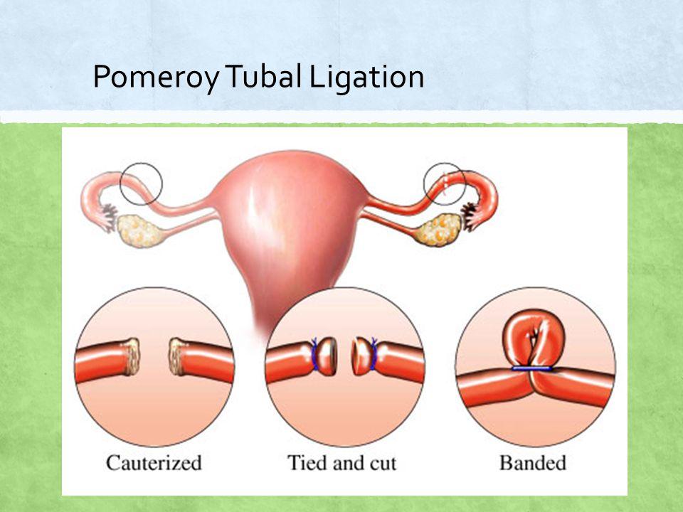 Pomeroy Tubal Ligation