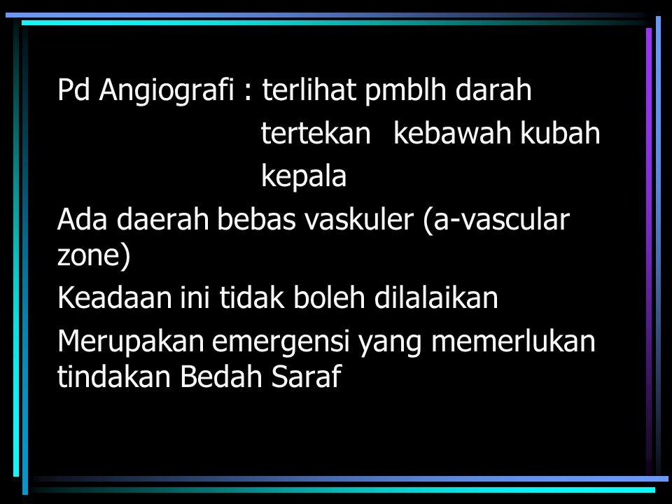 Pd Angiografi : terlihat pmblh darah tertekan kebawah kubah kepala Ada daerah bebas vaskuler (a-vascular zone) Keadaan ini tidak boleh dilalaikan Meru