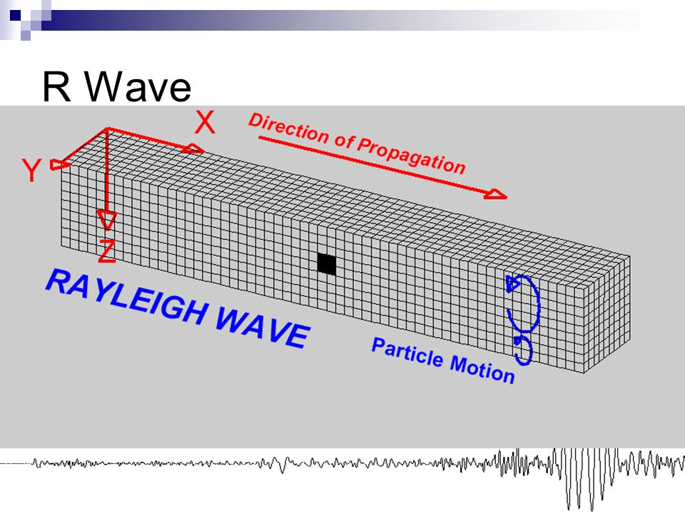 R Wave