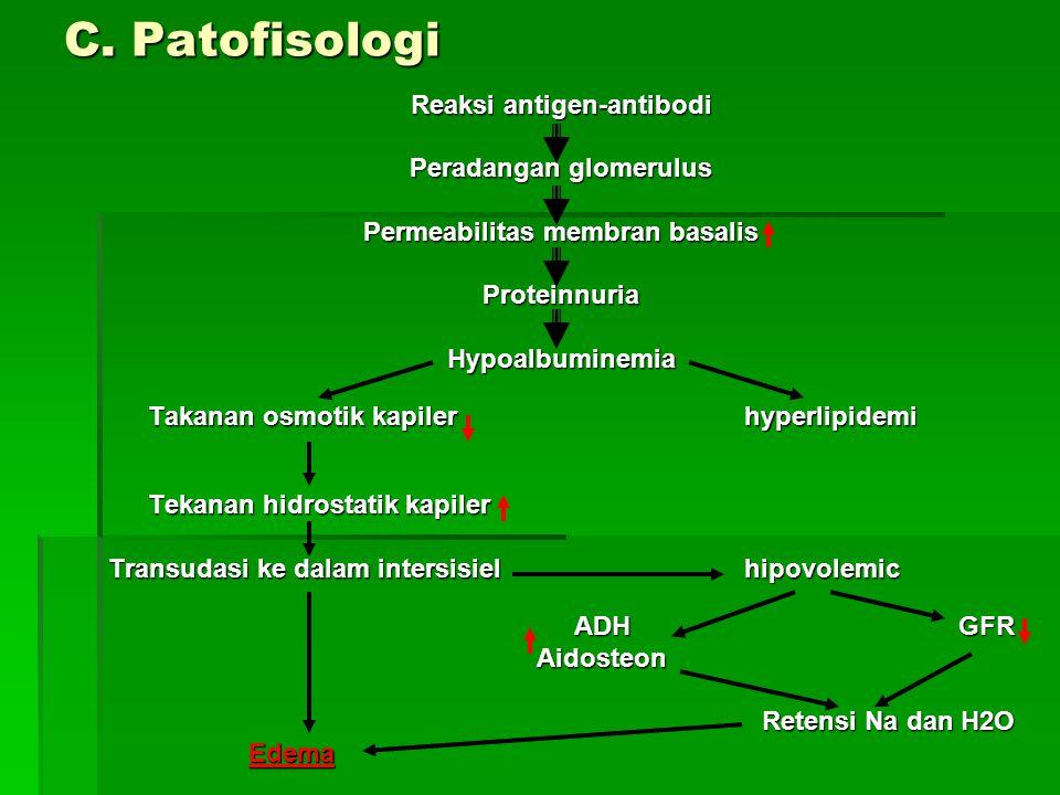 C. Patofisologi Reaksi antigen-antibodi Peradangan glomerulus Permeabilitas membran basalis ProteinnuriaHypoalbuminemia Takanan osmotik kapiler hyperl