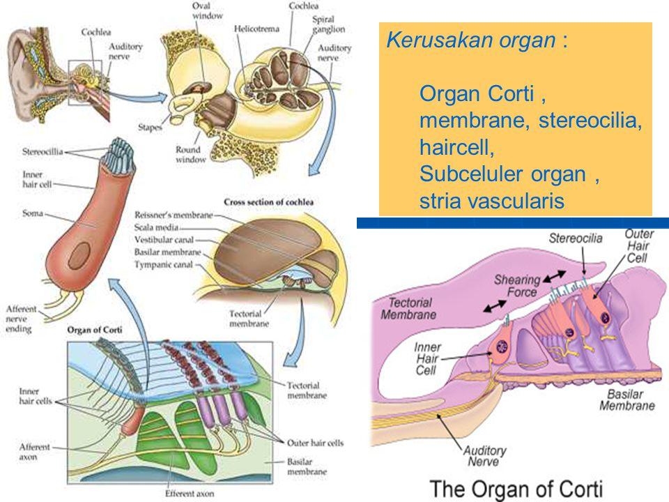 Kerusakan organ : Organ Corti, membrane, stereocilia, haircell, Subceluler organ, stria vascularis