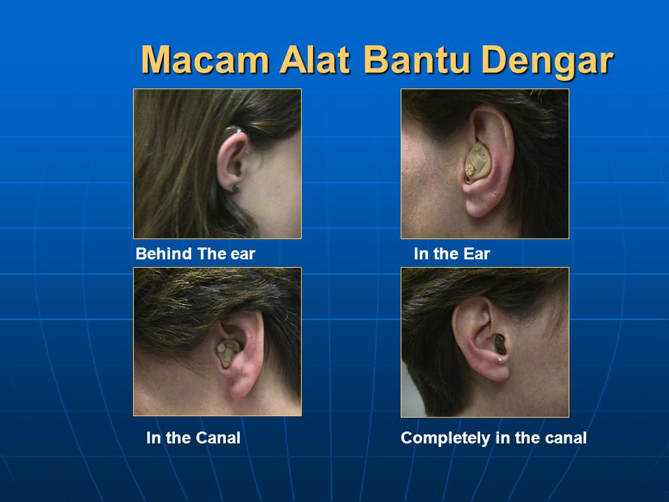 Macam Alat Bantu Dengar Behind The earIn the Ear In the Canal Completely in the canal