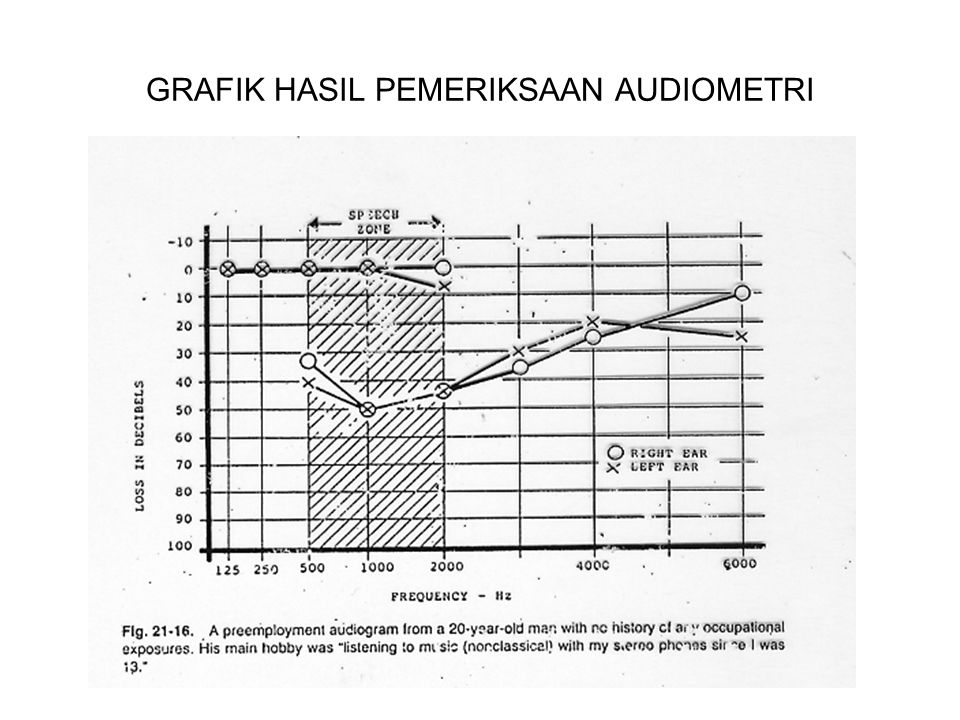 PENYAKIT AKIBAT KERJA YANG BERHUBUNGAN DENGAN DUST TYPE OF DUSTPRINCIPAL OCCUPATIONAL OCCURRENCES REACTION TYPELUNG DESEASEOBSERVATION MALEIC ANHYDRIDE CHEMICAL INDUSTRY, MANUFACTURE OF PALSTIC IRRITATION, IMMUNE REACTION (?) CONJUCTIVITIS, RHINITIS WITH ULCERATIONS, LARINGOPHARINGI TIS, ASTHMATIC BRONCHITIS DERMATITIS CARBON DUST, SOOT, GRAPHITES ANY WORK INVOLVING SOOT, RUBBER INDUSTRY, MANUFACTURING OF ELECTRODES ACCUMULATION, IRRITATION GRAPHITE PNEUMOCONIOSIS, CNSLD POSSIBLE FIBROGENIC EFFECT, POSSIBLE BRONCHIAL CARCINOMA