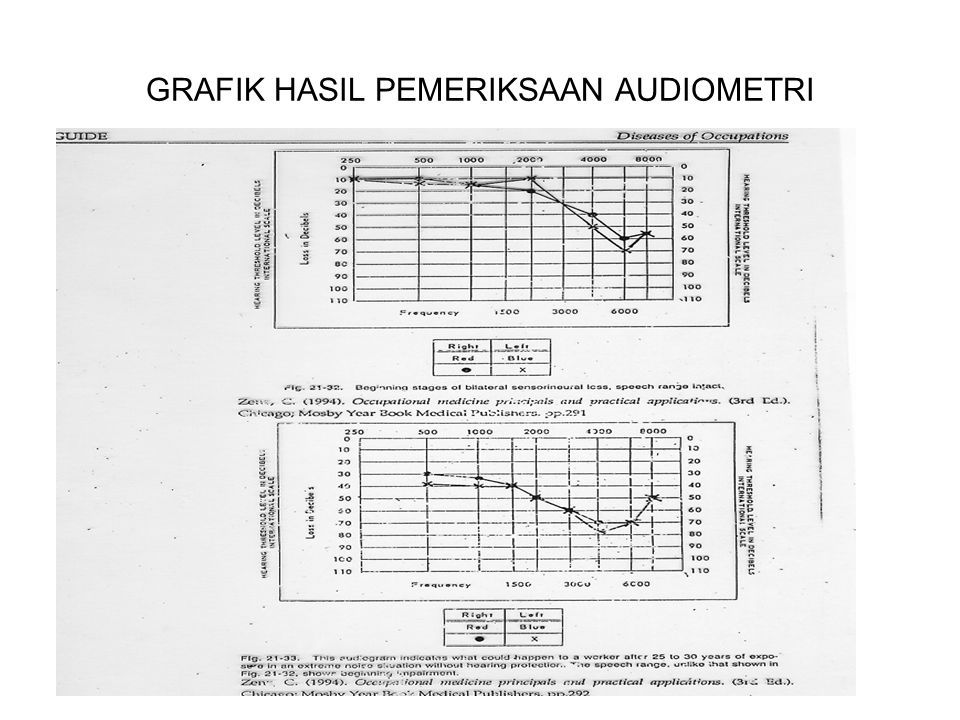 PENYAKIT AKIBAT KERJA YANG BERHUBUNGAN DENGAN DUST TYPE OF DUST PRINCIPAL OCCUPATIONAL OCCURRENCES REACTION TYPE LUNG DESEASEOBSERVATION QUARTZ AND MIXTURE COUNTING QUARTZ(COA L, MINERAL ORES,FLUOR SPAR,ROCK,S AND MINNING, METALURGICAL,ENGINERING, BUILDING MATERIAL,CONTRUCTION,STONE CUTTING, FUONDRY WORK, SAND BLASTING NODULAR FIBROSISI SILICOSIS, SNTHRACOSILIC OSIS AND MIXED PNEUMOCONIO SIS FOUND ALSO IN CONJUNCTION WITH TBERCOLOSIS AND CHRONIC NONSPECIFIC LUNG DISEASE (CNSLD),CRYSTALLINE SIO2 AND TRIDYMITE ACT LIKE QUARTZ KAOLINCERAMICINDUSTRI,(PORCELIN, POTTERY, EARTHENWARE,SANITARY WARE AND ELECTRICAL CERAMIC) NODULAR FIBROSISI SILOCOSISSDA QUARTZITE POWDERED QUARTZ KIESELGUHR( BURNT) REFRACTORIES (FIREPROOFCLAY, SILICA BRICK) PLASTERING(MIXING) MANUFACTURE OF FILTERING AND INSULATING MATERIAL NODULAR FIBROSISI SILOCOSISSDA