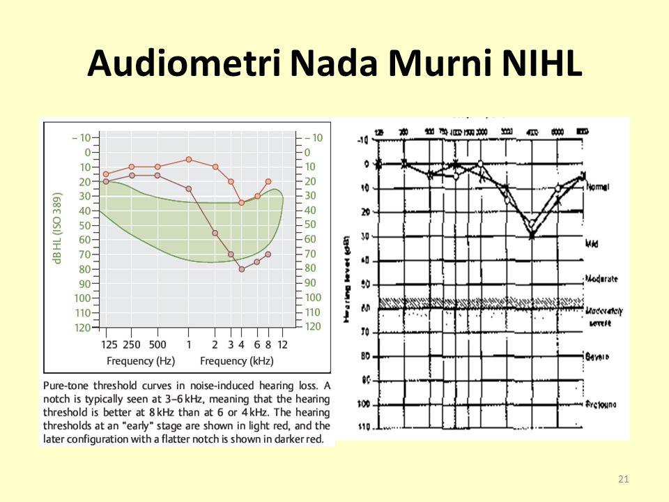 Audiometri Nada Murni NIHL 21