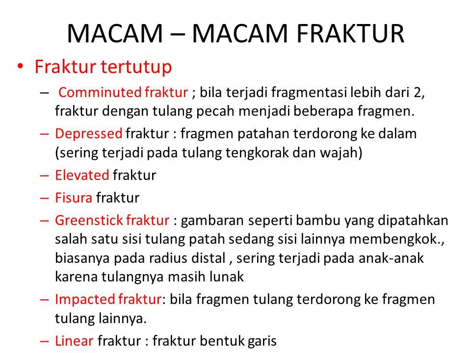MACAM – MACAM FRAKTUR Fraktur tertutup – Comminuted fraktur ; bila terjadi fragmentasi lebih dari 2, fraktur dengan tulang pecah menjadi beberapa frag