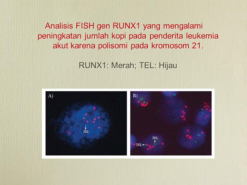 Analisis FISH gen RUNX1 yang mengalami peningkatan jumlah kopi pada penderita leukemia akut karena polisomi pada kromosom 21. RUNX1: Merah; TEL: Hijau