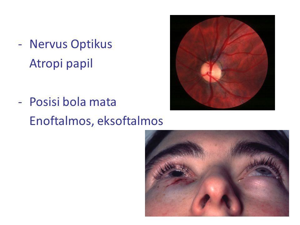 -Nervus Optikus Atropi papil -Posisi bola mata Enoftalmos, eksoftalmos