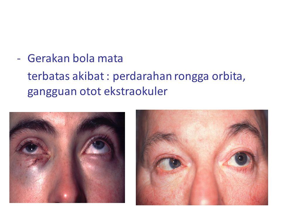 -Gerakan bola mata terbatas akibat : perdarahan rongga orbita, gangguan otot ekstraokuler