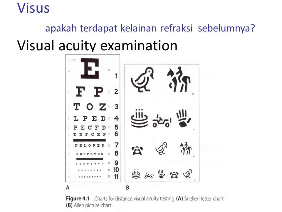 Visus apakah terdapat kelainan refraksi sebelumnya? Visual acuity examination