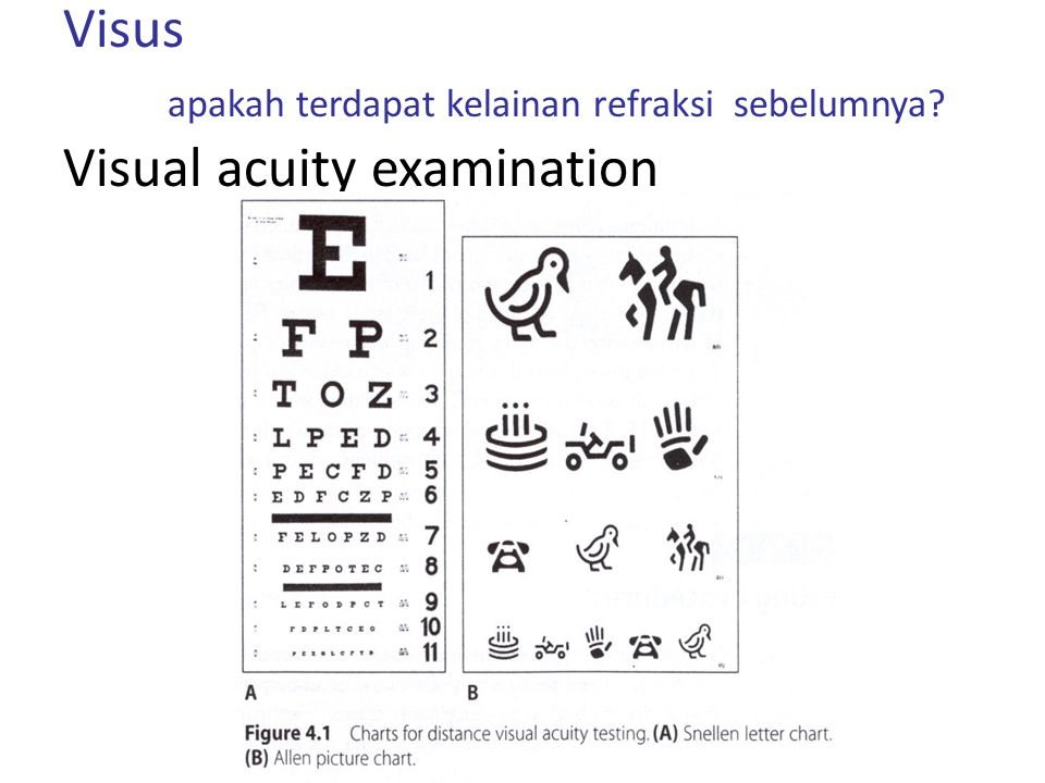 Palpebra Hematoma, hematoma kaca mata, edema, ptosis -Konjungtiva Khemosis, Perdarahan sub konjungtiva