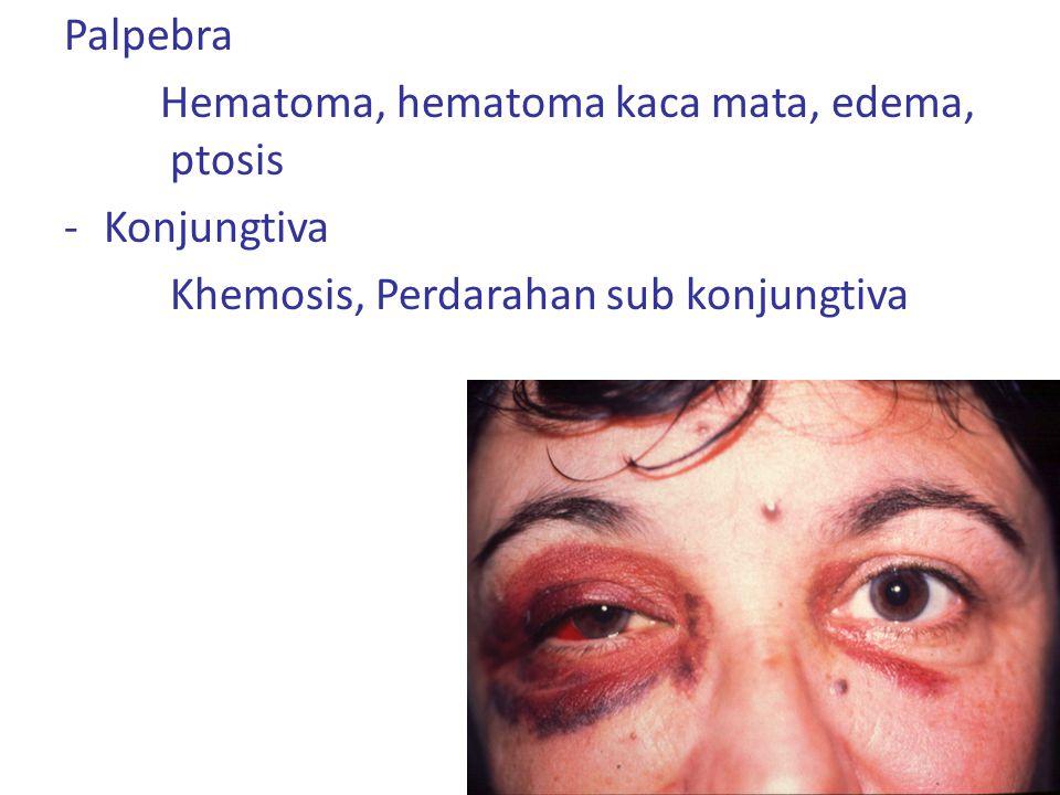 Sering pada pria dewasa muda Trauma pada pembuluh darah di iris perifer atau di corpus siliaris anterior