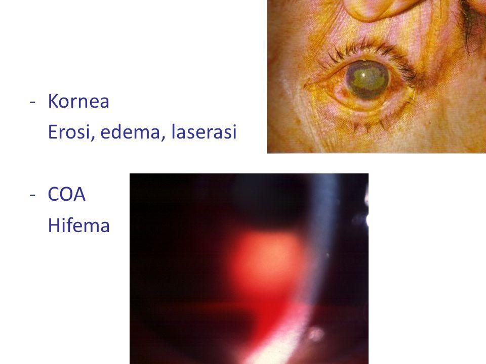-Kornea Erosi, edema, laserasi -COA Hifema