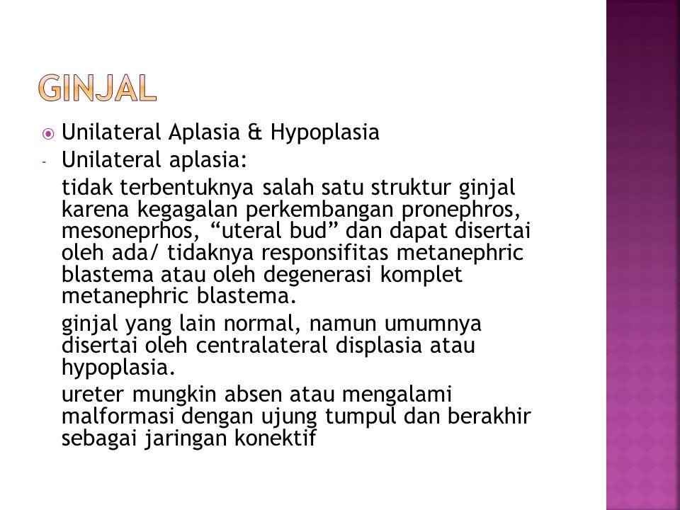  Unilateral Aplasia & Hypoplasia - Unilateral aplasia: tidak terbentuknya salah satu struktur ginjal karena kegagalan perkembangan pronephros, mesone