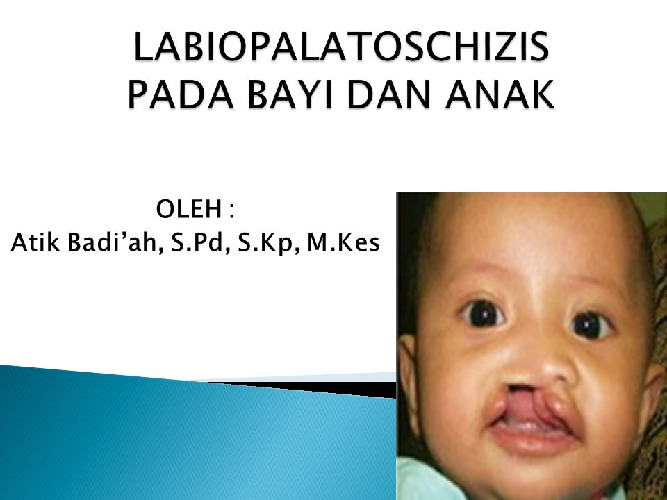 OLEH : Atik Badi'ah, S.Pd, S.Kp, M.Kes