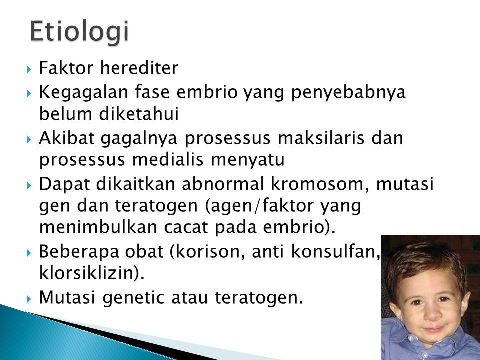 Faktor herediter  Kegagalan fase embrio yang penyebabnya belum diketahui  Akibat gagalnya prosessus maksilaris dan prosessus medialis menyatu  Da