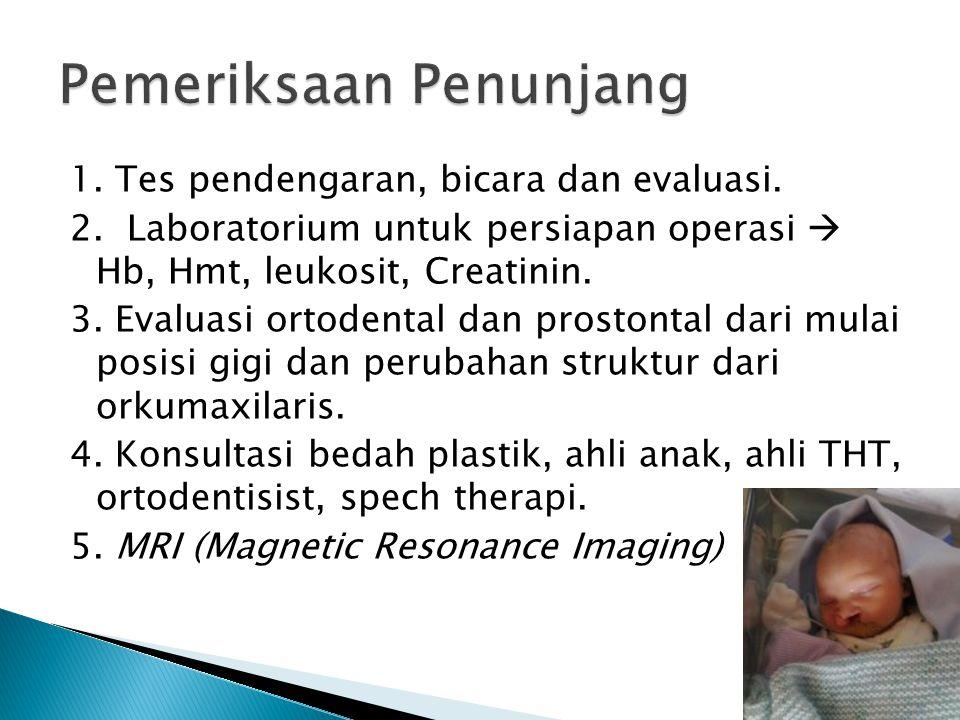 1. Tes pendengaran, bicara dan evaluasi. 2. Laboratorium untuk persiapan operasi  Hb, Hmt, leukosit, Creatinin. 3. Evaluasi ortodental dan prostontal