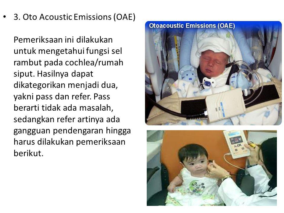 3. Oto Acoustic Emissions (OAE) Pemeriksaan ini dilakukan untuk mengetahui fungsi sel rambut pada cochlea/rumah siput. Hasilnya dapat dikategorikan me