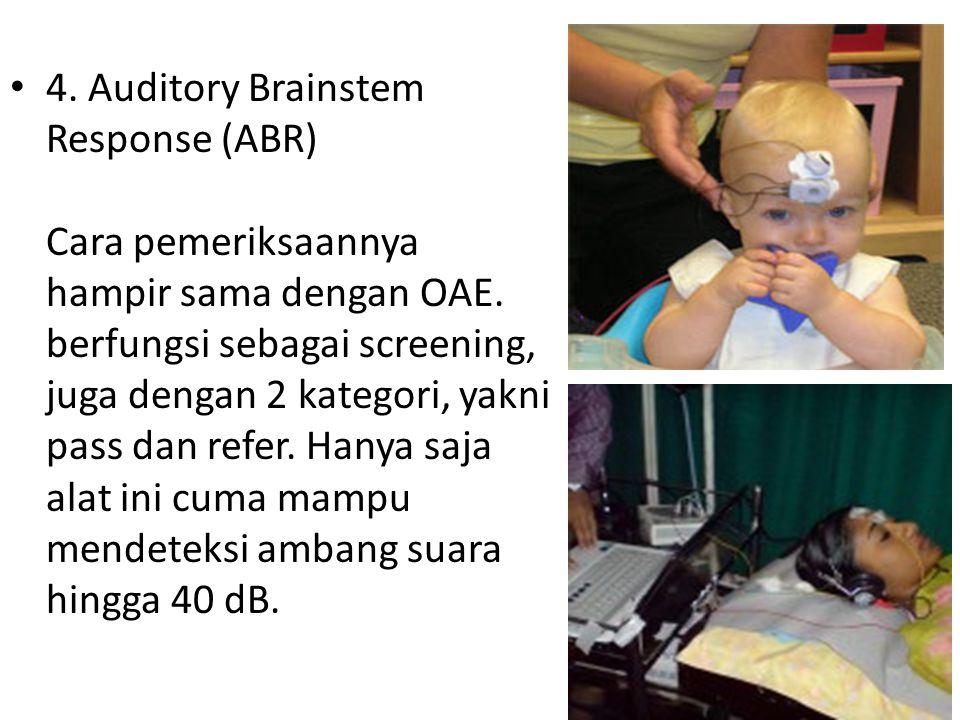 4. Auditory Brainstem Response (ABR) Cara pemeriksaannya hampir sama dengan OAE. berfungsi sebagai screening, juga dengan 2 kategori, yakni pass dan r