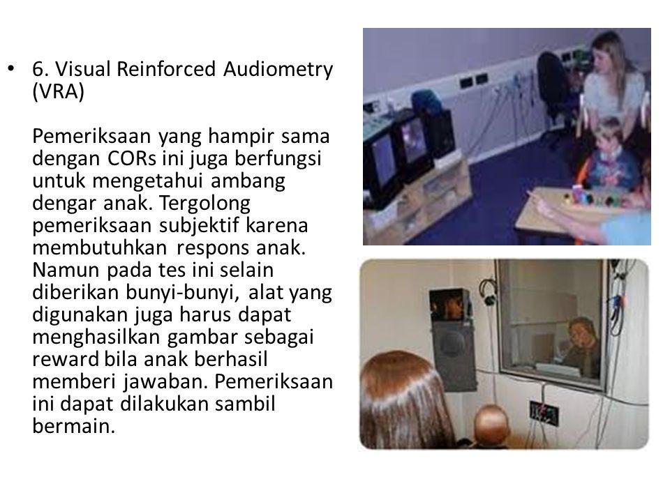 6. Visual Reinforced Audiometry (VRA) Pemeriksaan yang hampir sama dengan CORs ini juga berfungsi untuk mengetahui ambang dengar anak. Tergolong pemer