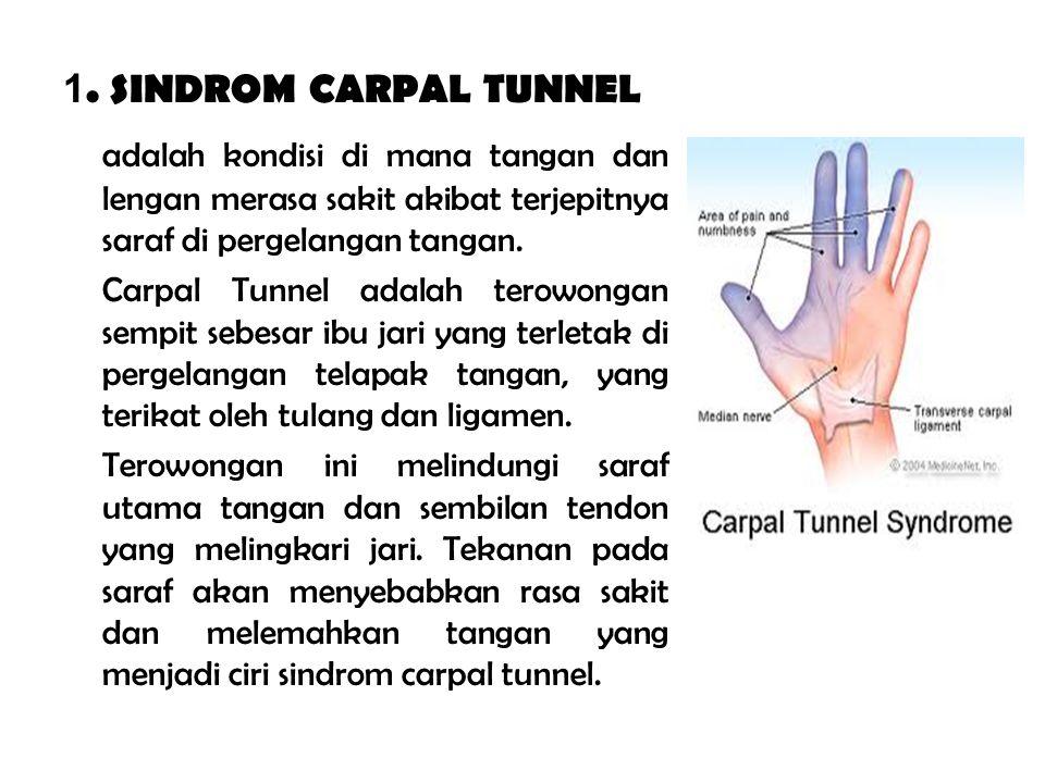 1. SINDROM CARPAL TUNNEL adalah kondisi di mana tangan dan lengan merasa sakit akibat terjepitnya saraf di pergelangan tangan. Carpal Tunnel adalah te
