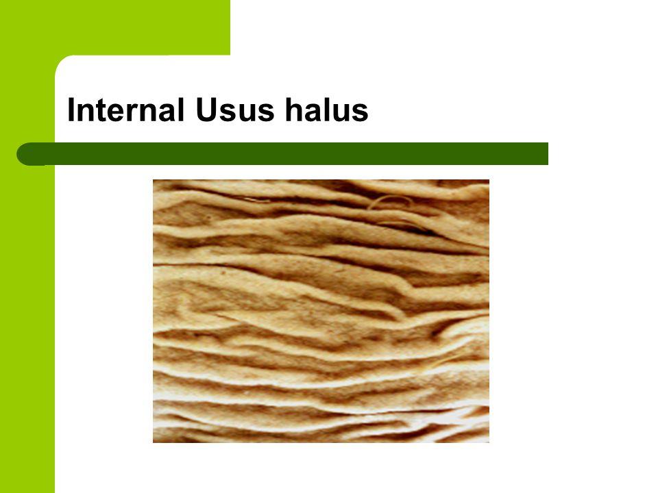 Internal Usus halus