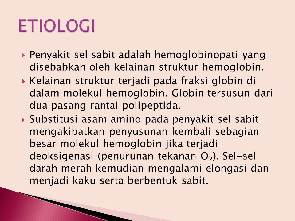  Penyakit sel sabit adalah hemoglobinopati yang disebabkan oleh kelainan struktur hemoglobin.