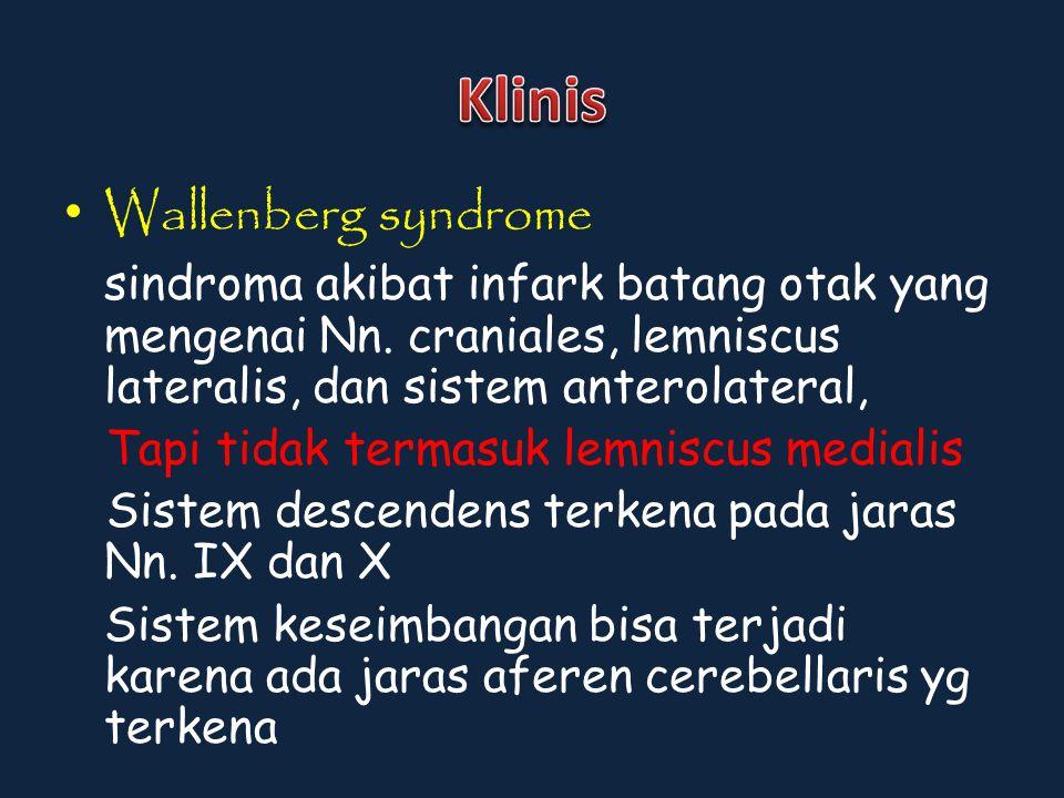 Wallenberg syndrome sindroma akibat infark batang otak yang mengenai Nn. craniales, lemniscus lateralis, dan sistem anterolateral, Tapi tidak termasuk