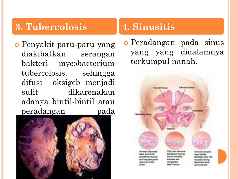 Penyakit paru-paru yang diakibatkan serangan bakteri mycobacterium tubercolosis. sehingga difusi oksigeb menjadi sulit dikarenakan adanya bintil-binti