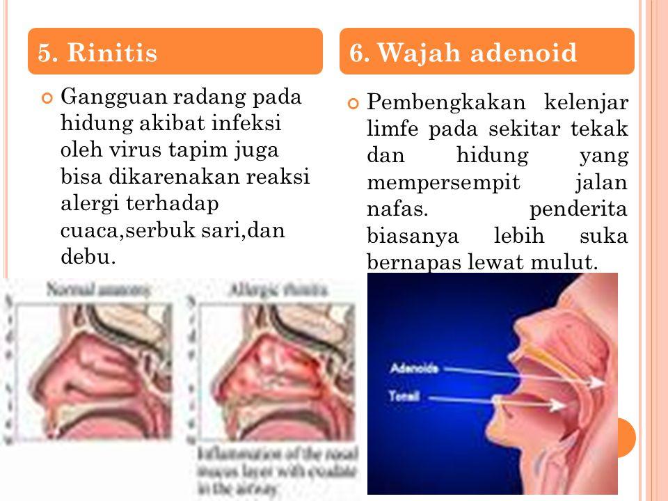 Gangguan radang pada hidung akibat infeksi oleh virus tapim juga bisa dikarenakan reaksi alergi terhadap cuaca,serbuk sari,dan debu. Pembengkakan kele